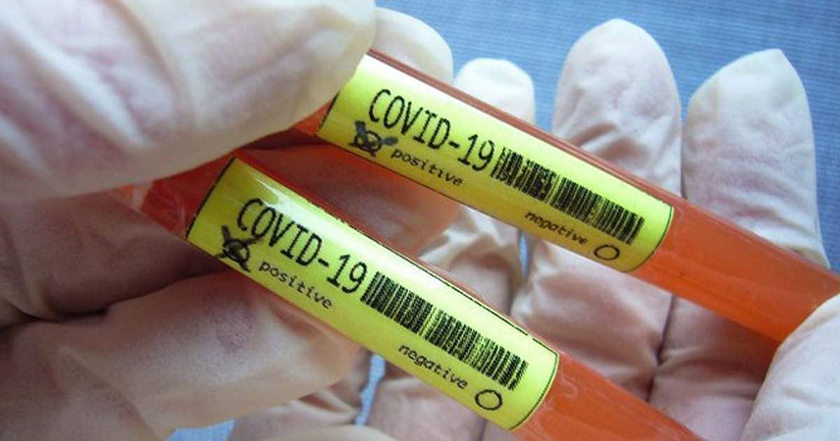 Coronavirus sperimentato vaccino