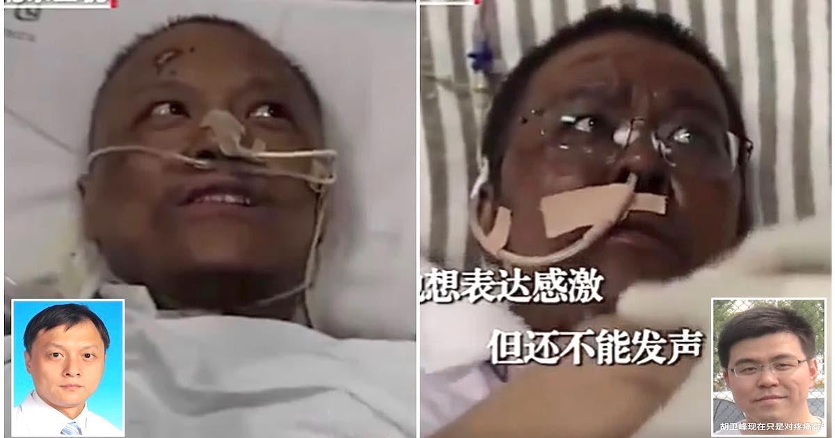 Medici cinesi contagiati si risvegliano con la pelle scura