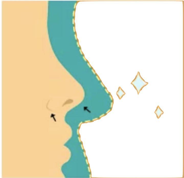 Naso piccolo