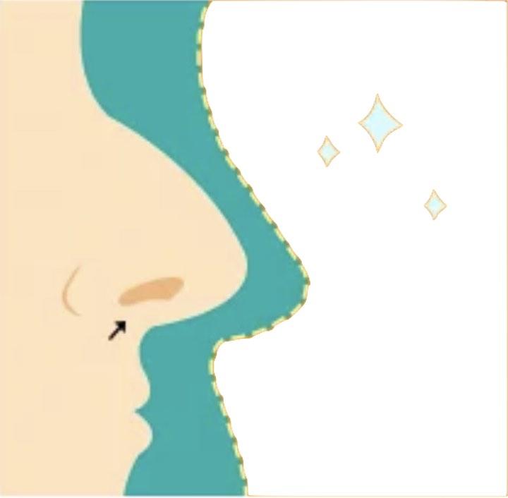 naso grande