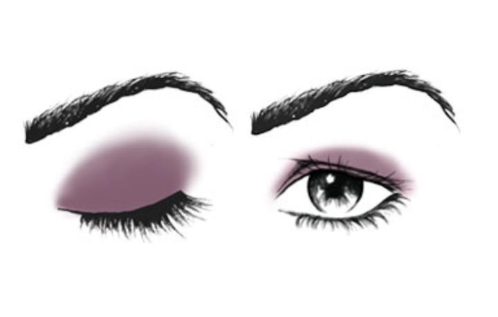 Occhi infossati (palpebra cadente)