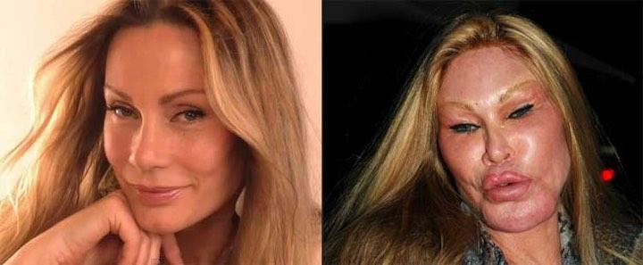 L'ossessione per la chirurgia plastica Jocelyn Wildenstein
