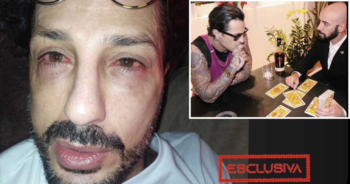 Fabrizio Corona rischia di perdere la vista